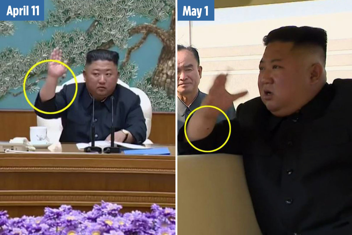 Kim Jong-un reappears with 'needle' mark on wrist suggests he's had heart surgery, experts claim