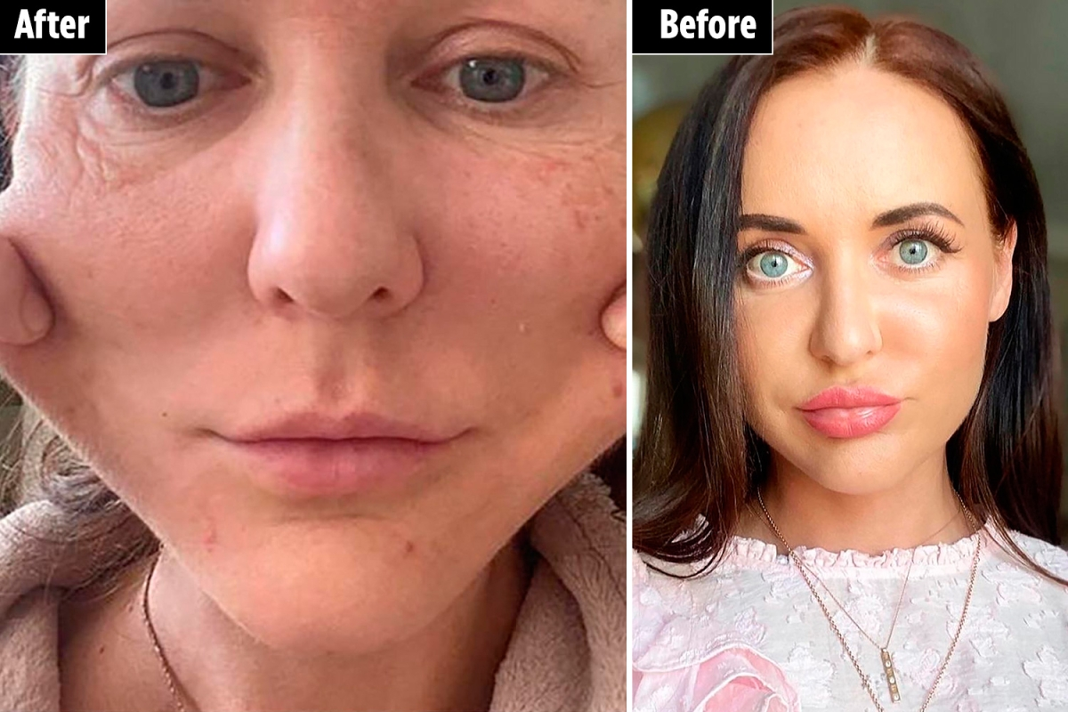 My face was MUMMIFIED after irreversible beauty treatment –  then my boyfriend DUMPED me as I look ancient